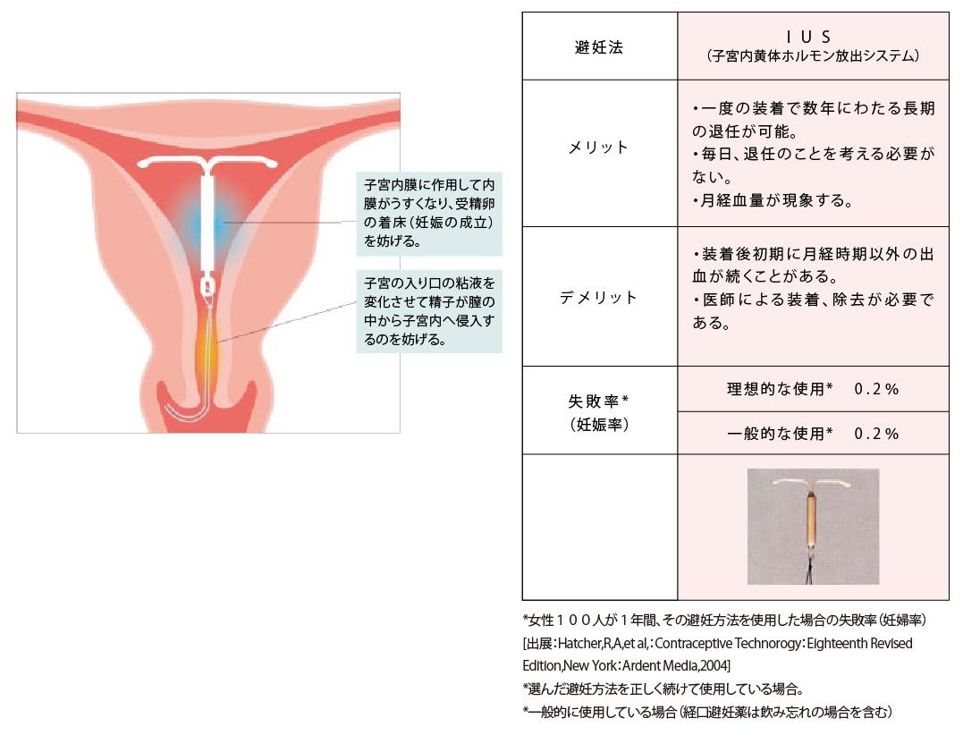 妊娠 確率 挿入